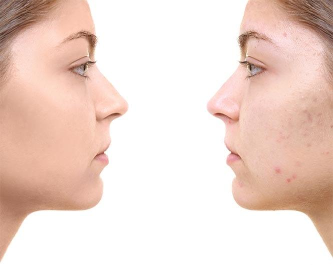 טיפולי פנים אסתטיקה רפואית